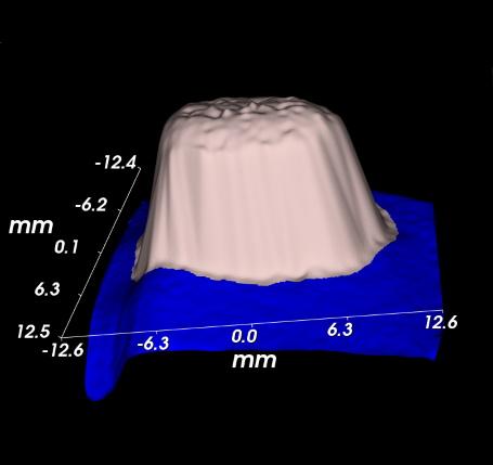 Xenograft 3D reconstruction
